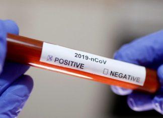 345 in Lagos: NCDC confirms 681 new cases of coronavirus